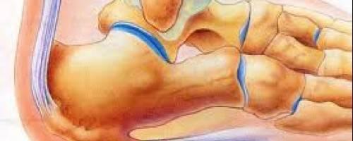 plantar fasciitis massage techniques